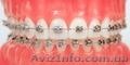 Стоматолог - Ортодонт. Все виды брекетов. Выравнивание зубов - Изображение #5, Объявление #1530178