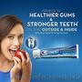 Лечебная зубн паста с бережным отбеливанием Crest Pro-Health 144гр-USA - Изображение #2, Объявление #1162315